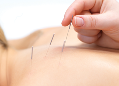 Acupuncture in bristol